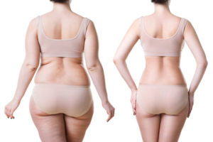 Am I A Candidate For Weight Loss Surgery Dr Michael P Choi D O